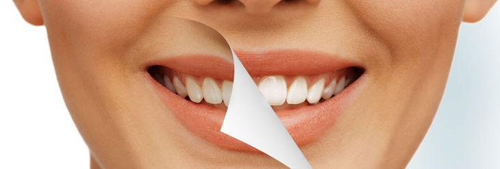 ¿ No te gusta el color de tus dientes? Todo tiene solución.